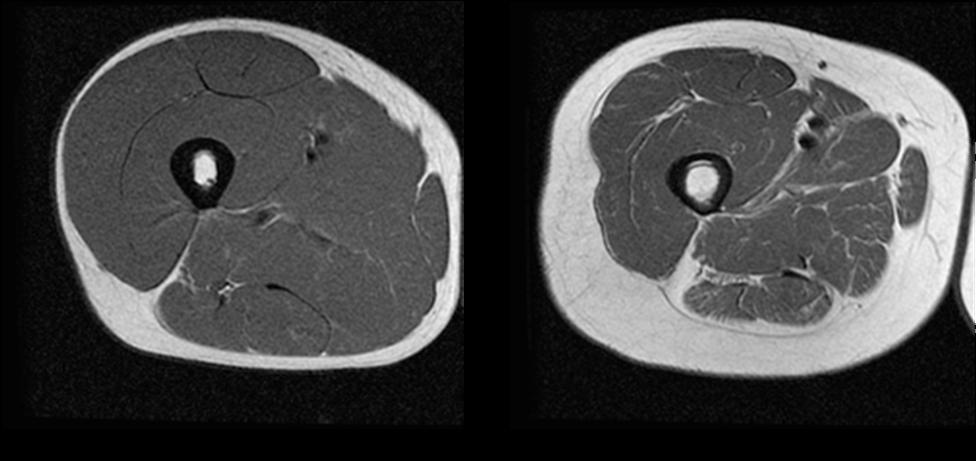 MRI cross section male thigh